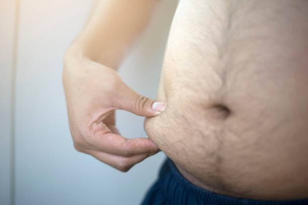 es posible engordar después de reducción de estómago