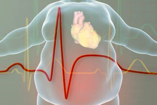 los ataques al corazón son propensos en personas obesas si engordan después de reducción de estómago