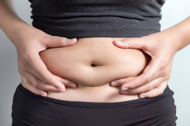 engordar después de reducción de estómago flacidez