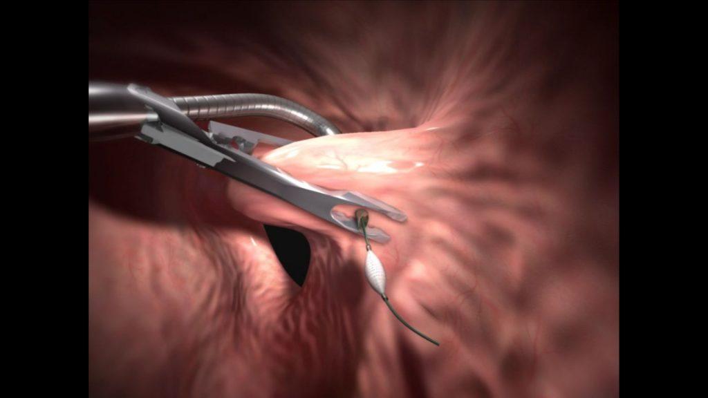 otra ilustración 3D de una operación de reducción de estómago