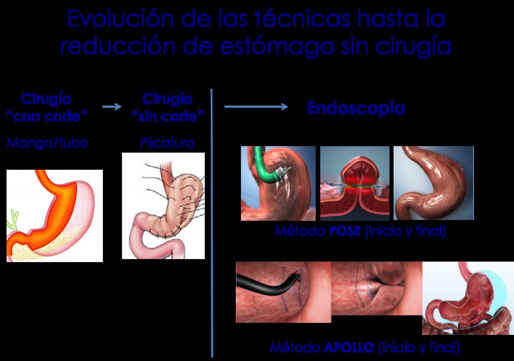técnicas operación reducción de estómago