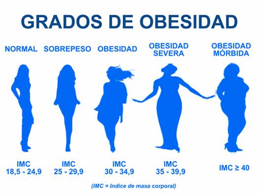 grados de obesidad operación reducción de estómago