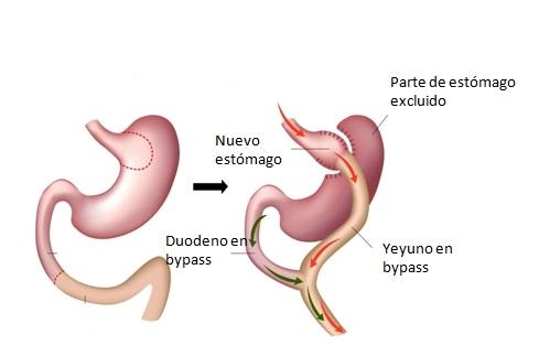 operación reducción de estómago explicación