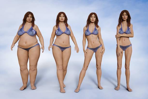 ilustración 3D antes y después operación reducción estómago