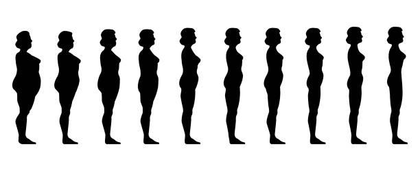 evolución antes y después de operación reducción de estómago