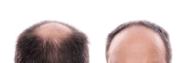 caída del pelo hombre reducción de estómago efectos secundarios