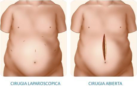 comparación reducción de estómago por laparoscopia