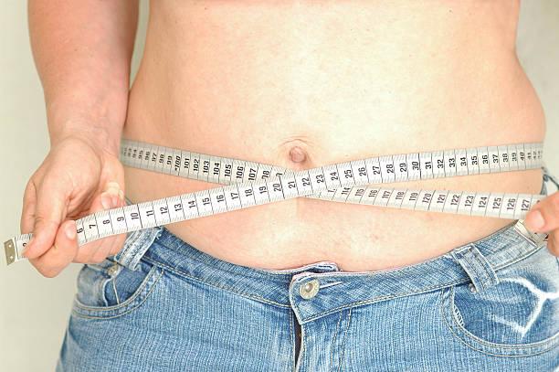reducción de estómago precio hombre