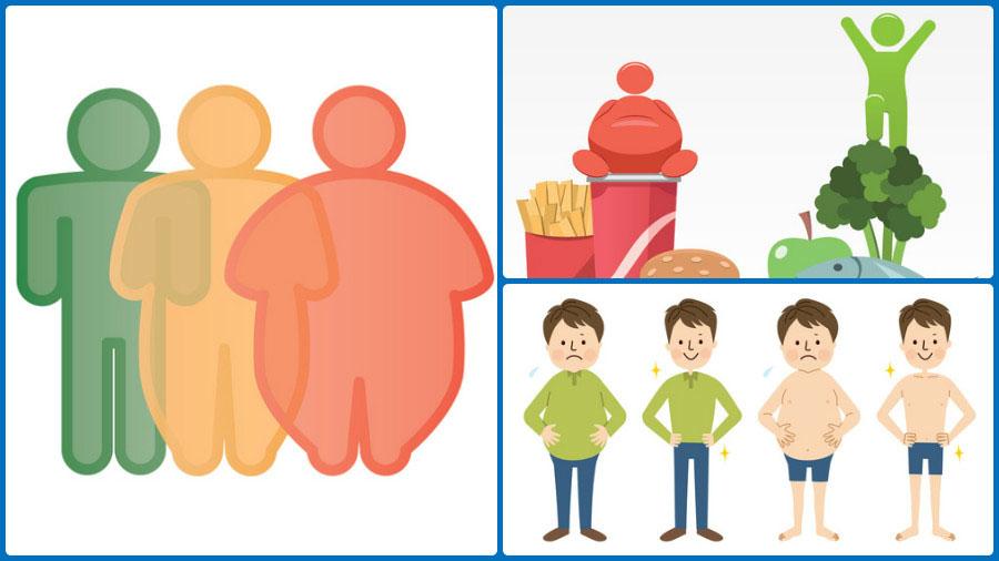 seguridad social intervención por reducción de estómago
