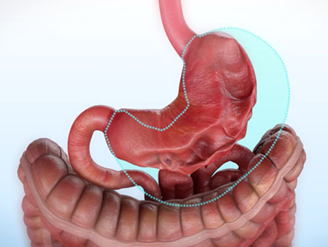 reducción de estómago sin cirugía operación