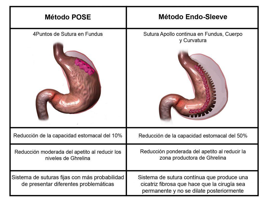reducción de estómago sin cirugía cuadro comparativo