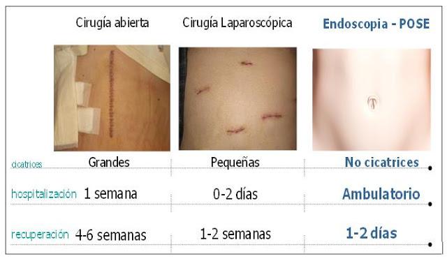 comparación reducción de estómago sin cirugía